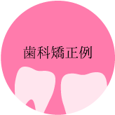 歯科矯正例